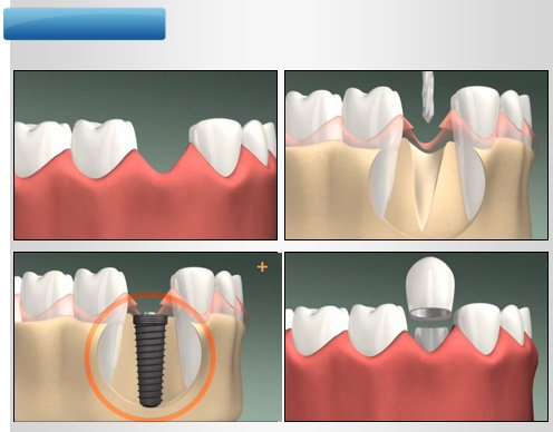 implant-once-sonra-1
