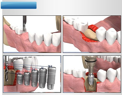 implant-once-sonra-4